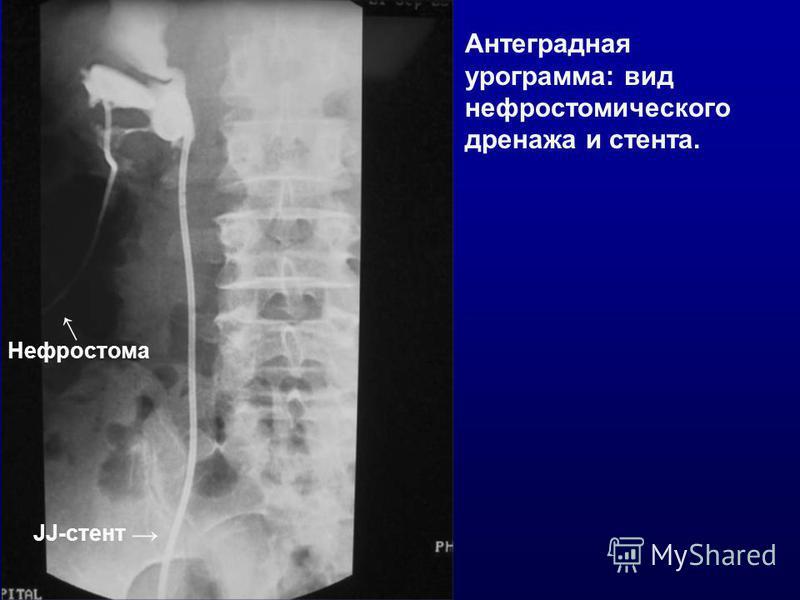 Нефростома JJ-стент Антеградная урограмма: вид нефростомического дренажа и стента.