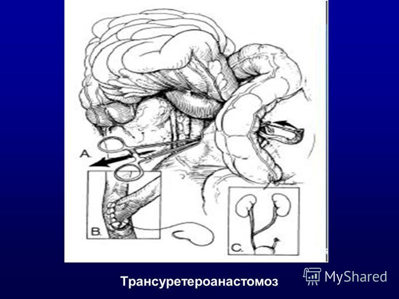 Трансуретероанастомоз