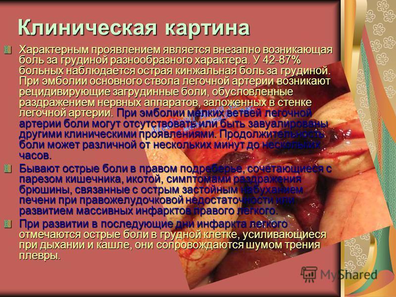 Клиническая картина Характерным проявлением является внезапно возникающая боль за грудиной разнообразного характера. У 42-87% больных наблюдается острая кинжальная боль за грудиной. При эмболии основного ствола легочной артерии возникают рецидивирующ