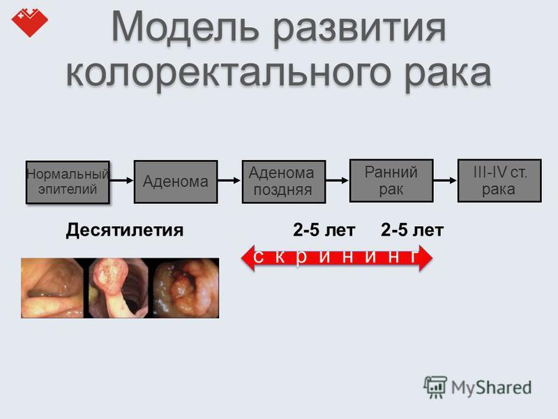 Модель развития колоректального рака Десятилетия 2-5 лет 2-5 лет Нормальный эпителий Нормальный эпителий Аденома поздняя Ранний рак III-IV ст. рака скрининг