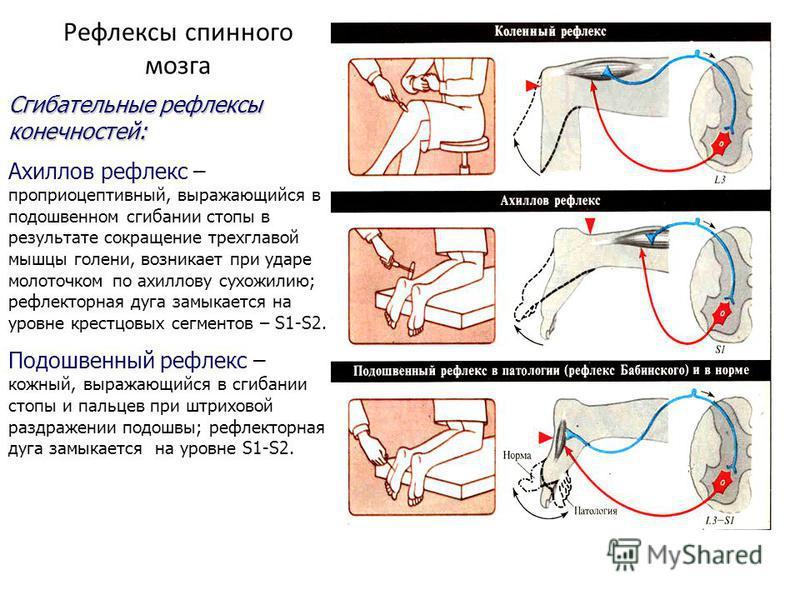Рефлексы спинного мозга Сгибательные рефлексы конечностей: Ахиллов рефлекс – проприоцептивный, выражающийся в подошвенном сгибании стопы в результате сокращение трехглавой мышцы голени, возникает при ударе молоточком по ахиллову сухожилию; рефлекторн