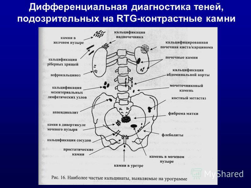 Дифференциальная диагностика теней, подозрительных на RTG-контрастные камни