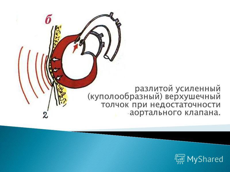 разлитой усиленный (куполообразный) верхушечный толчок при недостаточности аортального клапана.
