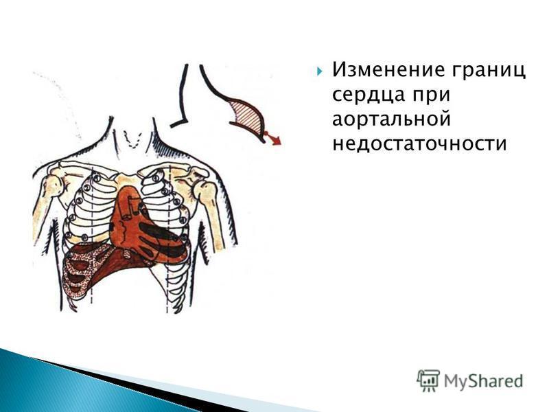 Изменение границ сердца при аортальной недостаточности