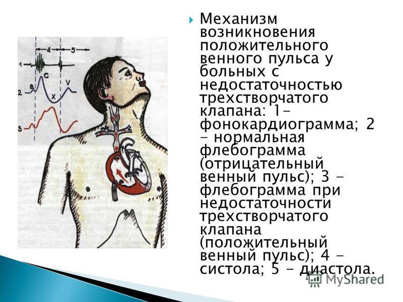 Механизм возникновения положительного венного пульса у больных с недостаточностью трехстворчатого клапана: 1- фонокардиограмма; 2 - нормальная флебограмма (отрицательный венный пульс); 3 - флебограмма при недостаточности трехстворчатого клапана (поло