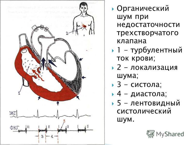 Органический шум при недостаточности трехстворчатого клапана 1 - турбулентный ток крови; 2 - локализация шума; 3 - систола; 4 - диастола; 5 - лентовидный систолический шум.