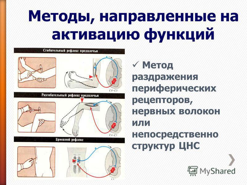 Методы, направленные на активацию функций Метод раздражения периферических рецепторов, нервных волокон или непосредственно структур ЦНС