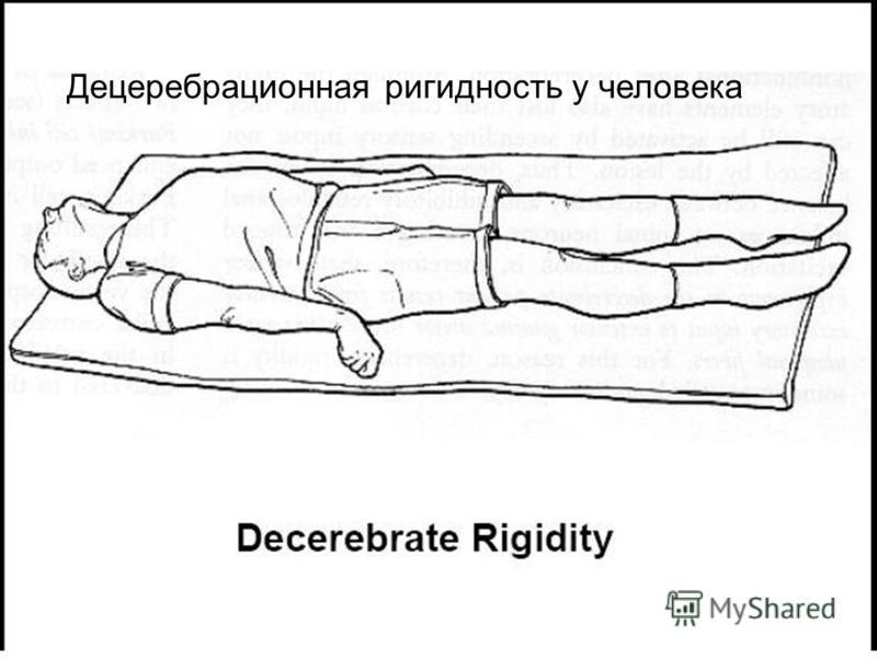 Децеребрационная ригидность у человека