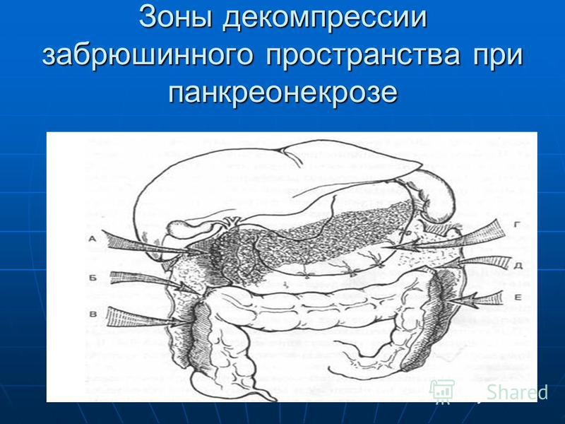Зоны декомпрессии забрюшинного пространства при панкреонекрозе