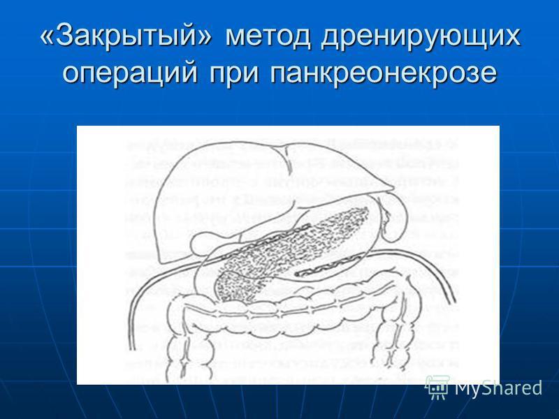 «Закрытый» метод дренирующих операций при панкреонекрозе