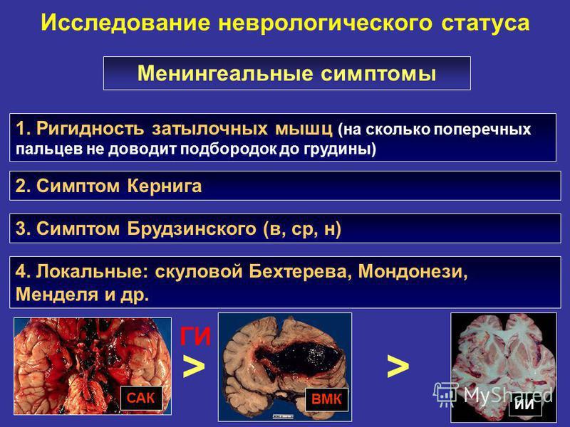 Исследование неврологического статуса 1. Ригидность затылочных мышц (на сколько поперечных пальцев не доводит подбородок до грудины) Менингеальные симптомы 2. Симптом Кернига 3. Симптом Брудзинского (в, ср, н) САК ИИ ВМК > ГИ > 4. Локальные: скуловой