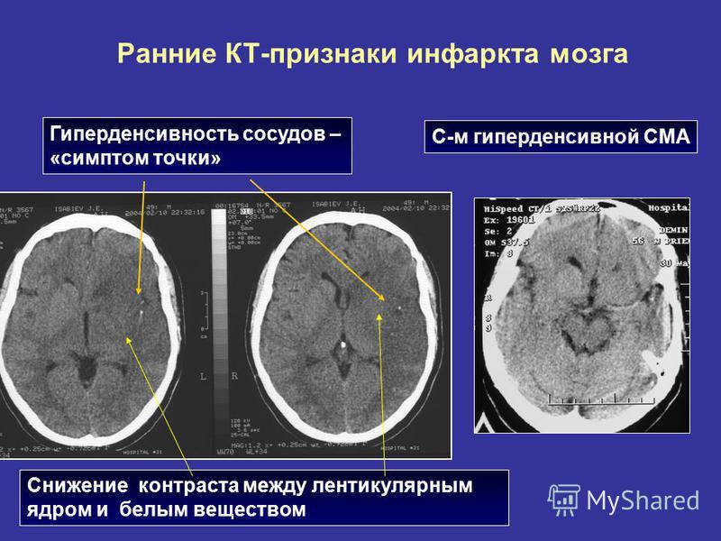 Ранние КТ-признаки инфаркта мозга Снижение контраста между лентикулярным ядром и белым веществом Гиперденсивность сосудов – «симптом точки» С-м гиперденсивной СМА