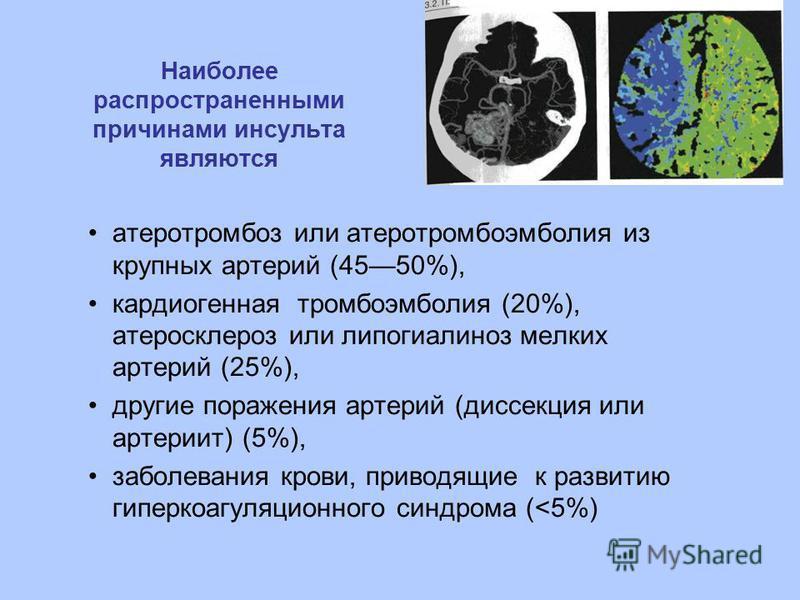 Наиболее распространенными причинами инсульта являются атеротромбоз или атеротромбоэмболия из крупных артерий (4550%), кардиогенная тромбоэмболия (20%), атеросклероз или липогиалиноз мелких артерий (25%), другие поражения артерий (диссекция или артер