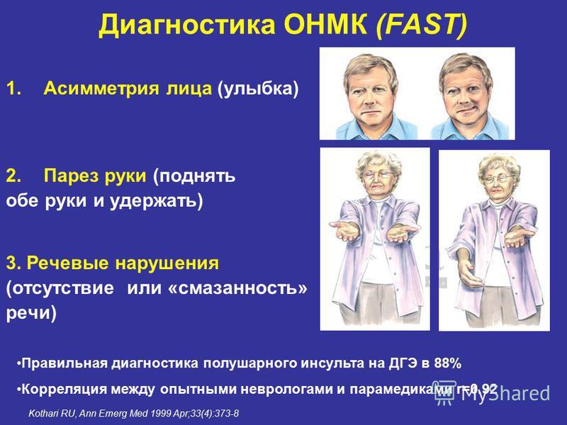 Диагностика ОНМК (FAST) 1. Асимметрия лица (улыбка) 2. Парез руки (поднять обе руки и удержать) 3. Речевые нарушения (отсутствие или «смазанность» речи) Kothari RU, Ann Emerg Med 1999 Apr;33(4):373-8 Правильная диагностика полушарного инсульта на ДГЭ