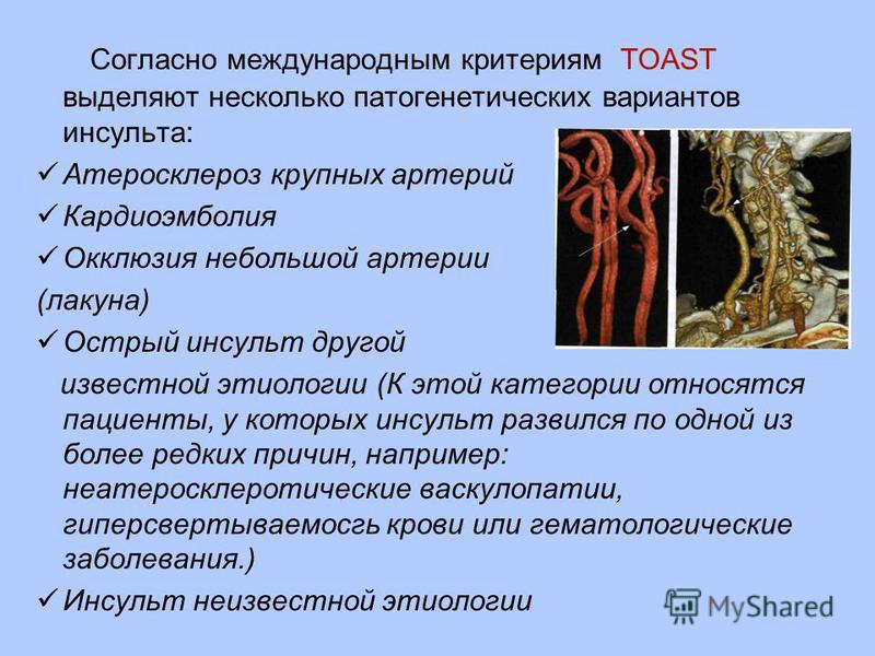 Согласно международным критериям TOAST выделяют несколько патогенетических вариантов инсульта: Атеросклероз крупных артерий Кардиоэмболия Окклюзия небольшой артерии (лакуна) Острый инсульт другой известной этиологии (К этой категории относятся пациен