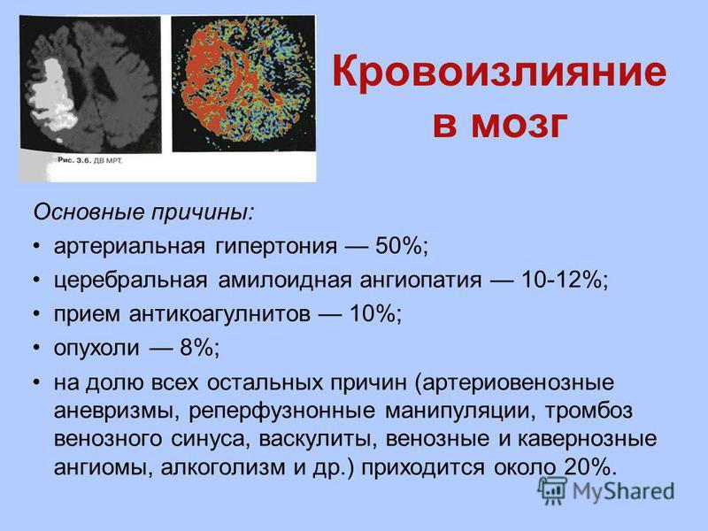 Кровоизлияние в мозг Основные причины: артериальная гипертония 50%; церебральная амилоидная ангиопатия 10-12%; прием антикоагулнитов 10%; опухоли 8%; на долю всех остальных причин (артериовенозные аневризмы, реперфузнонные манипуляции, тромбоз венозн