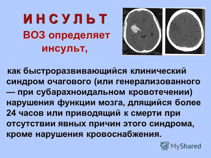 И Н С У Л Ь Т И Н С У Л Ь Т ВОЗ определяет инсульт, как быстроразвивающийся клинический синдром очагового (или генерализованного при субарахноидальном кровотечении) нарушения функции мозга, длящийся более 24 часов или приводящий к смерти при отсутств