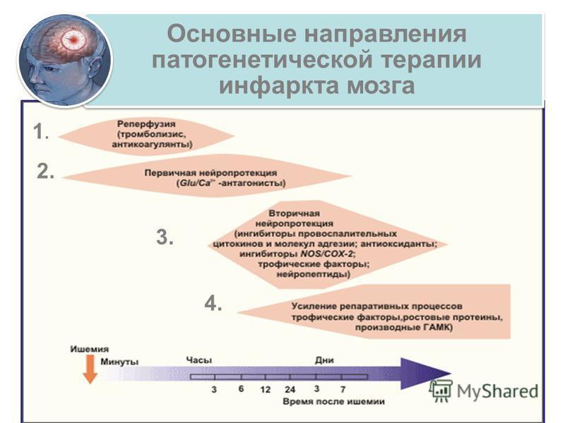 Основные направления патогенетической терапии инфаркта мозга 1.1. 2. 3. 4.
