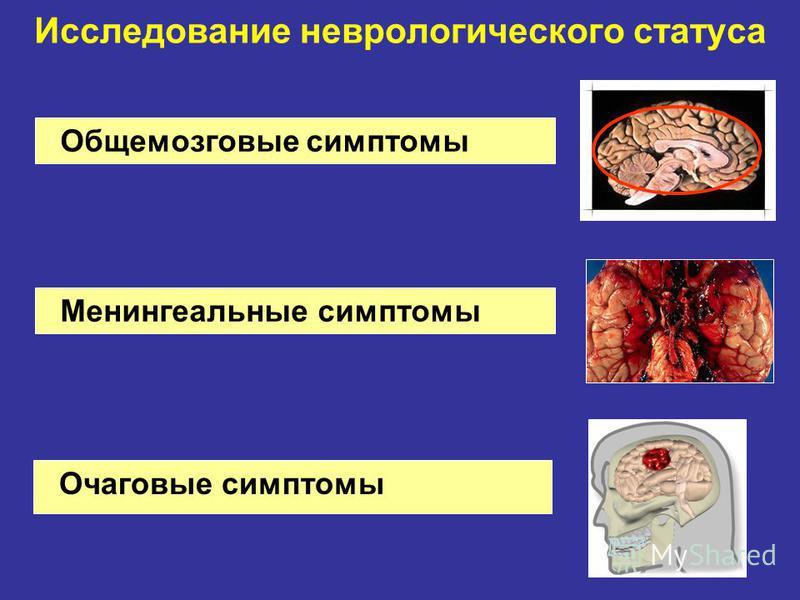 Очаговые симптомы Исследование неврологического статуса Общемозговые симптомы Менингеальные симптомы