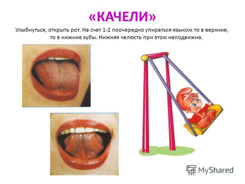 «КАЧЕЛИ» Улыбнуться, открыть рот. На счет 1-2 поочередно упираться языком то в верхние, то в нижние зубы. Нижняя челюсть при этом неподвижна.