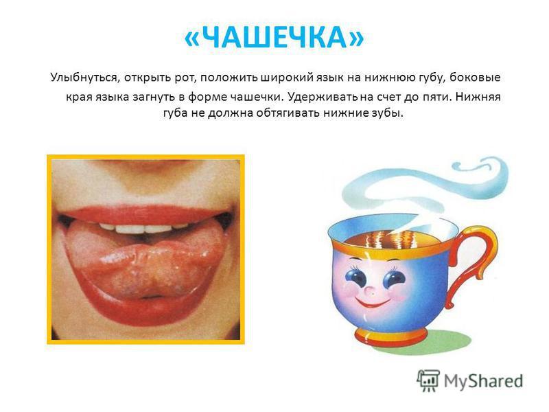 «ЧАШЕЧКА» Улыбнуться, открыть рот, положить широкий язык на нижнюю губу, боковые края языка загнуть в форме чашечки. Удерживать на счет до пяти. Нижняя губа не должна обтягивать нижние зубы.