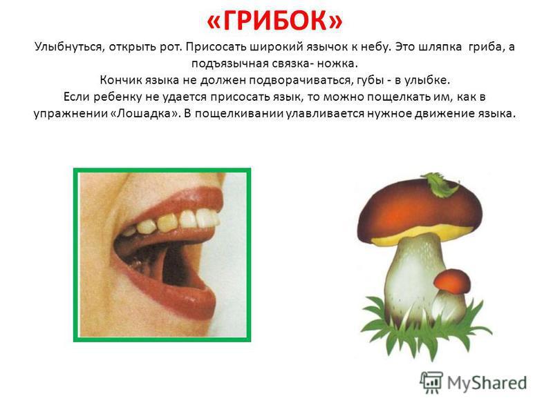 «ГРИБОК» Улыбнуться, открыть рот. Присосать широкий язычок к небу. Это шляпка гриба, а подъязычная связка- ножка. Кончик языка не должен подворачиваться, губы - в улыбке. Если ребенку не удается присосать язык, то можно пощелкать им, как в упражнении