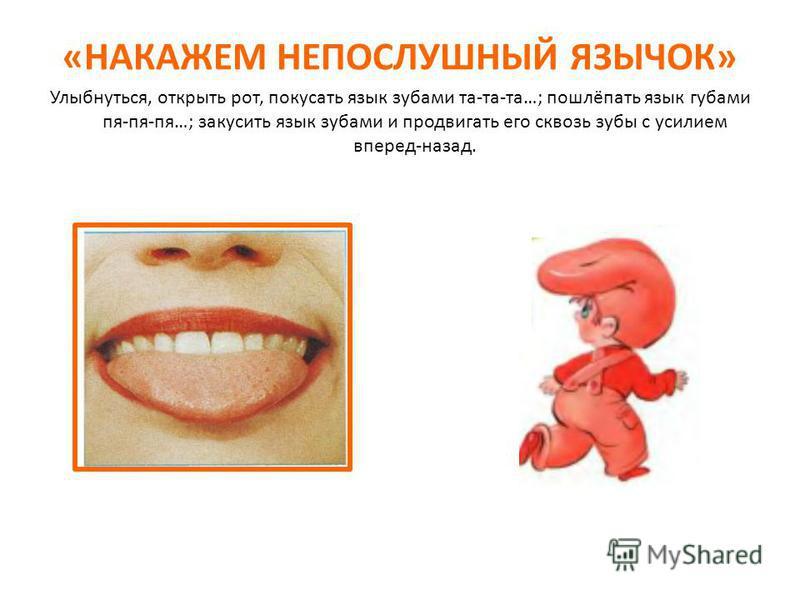 «НАКАЖЕМ НЕПОСЛУШНЫЙ ЯЗЫЧОК» Улыбнуться, открыть рот, покусать язык зубами та-та-та…; пошлёпать язык губами пя-пя-пя…; закусить язык зубами и продвигать его сквозь зубы с усилием вперед-назад.