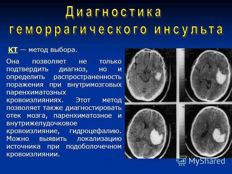 КТ метод выбора. Она позволяет не только подтвердить диагноз, но и определить распространенность поражения при внутримозговых паренхиматозных кровоизлияниях. Этот метод позволяет также диагностировать отек мозга, паренхиматозноййе и внутрижелудочково