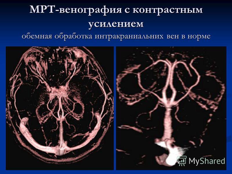 МРТ-венография с контрастным усилением объемная обработка интракраниальних вен в норме