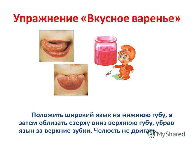 Упражнение «Вкусное варенье» Положить широкий язык на нижнюю губу, а затем облизать сверху вниз верхнюю губу, убрав язык за верхние зубки. Челюсть не двигать.