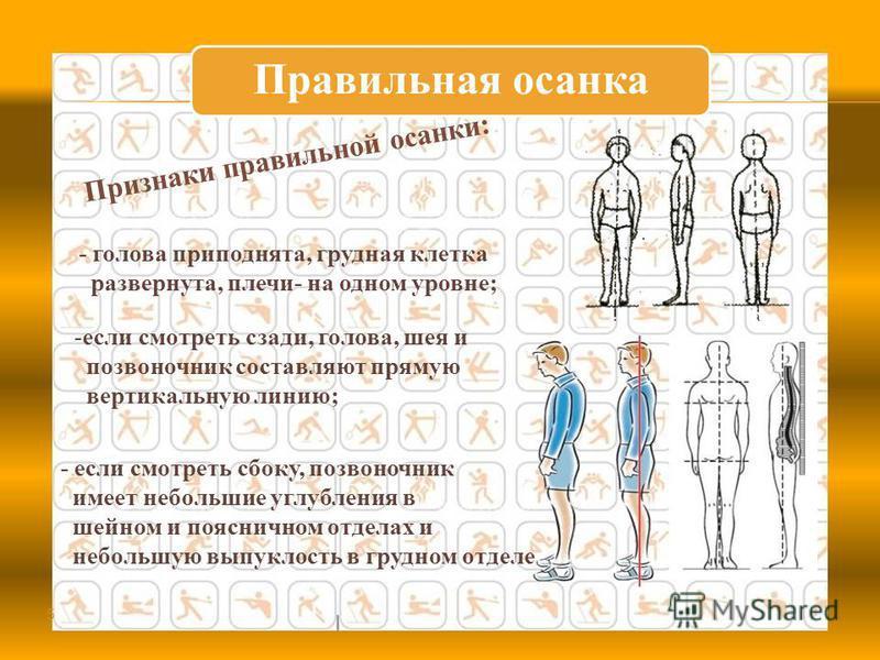 Правильная осанка - голова приподнята, грудная клетка развернута, плечи- на одном уровне; 5 Признаки правильной осанки: -если смотреть сзади, голова, шея и позвоночник составляют прямую вертикальную линию; - если смотреть сбоку, позвоночник имеет неб