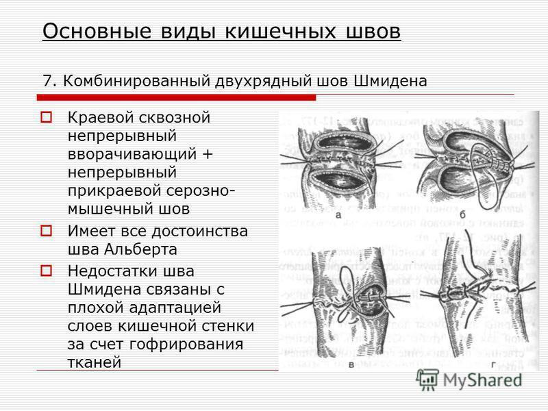 Основные виды кишечных швов 7. Комбинированный двухрядный шов Шмидена Краевой сквозной непрерывный вворачивающий + непрерывный прикраевой серозно- мышечный шов Имеет все достоинства шва Альберта Недостатки шва Шмидена связаны с плохой адаптацией слое