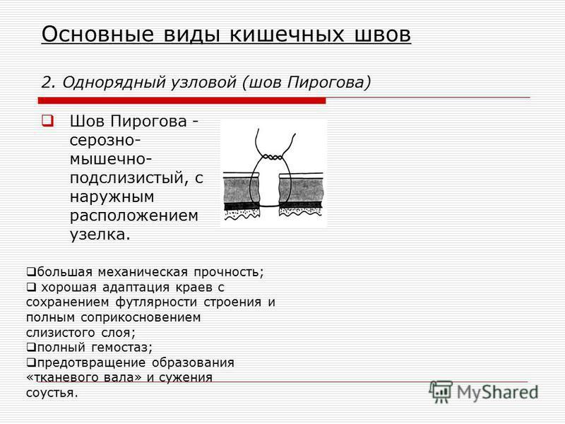 Основные виды кишечных швов 2. Однорядный узловой (шов Пирогова) Шов Пирогова - серозно- мышечно- подслизистый, с наружным расположением узелка. большая механическая прочность; хорошая адаптация краев с сохранением футлярности строения и полным сопри