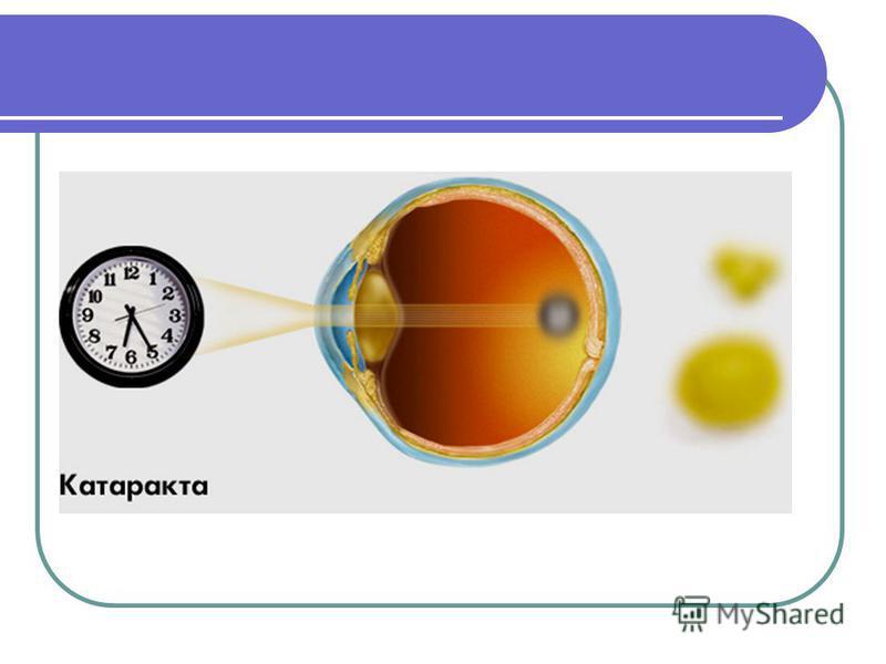 Катаракта Катаракта заболевание, при котором хрусталик глаза теряет прозрачность. Помутнение служит препятствием на пути световых лучей от предметов, при нормальном зрении свободно попадающих в глаз. Поэтому при катаракте один из основных симптомов у