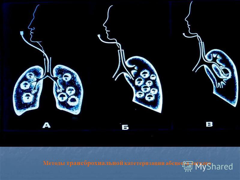 Методы трансброхиальной катетеризации абсцесса легкого