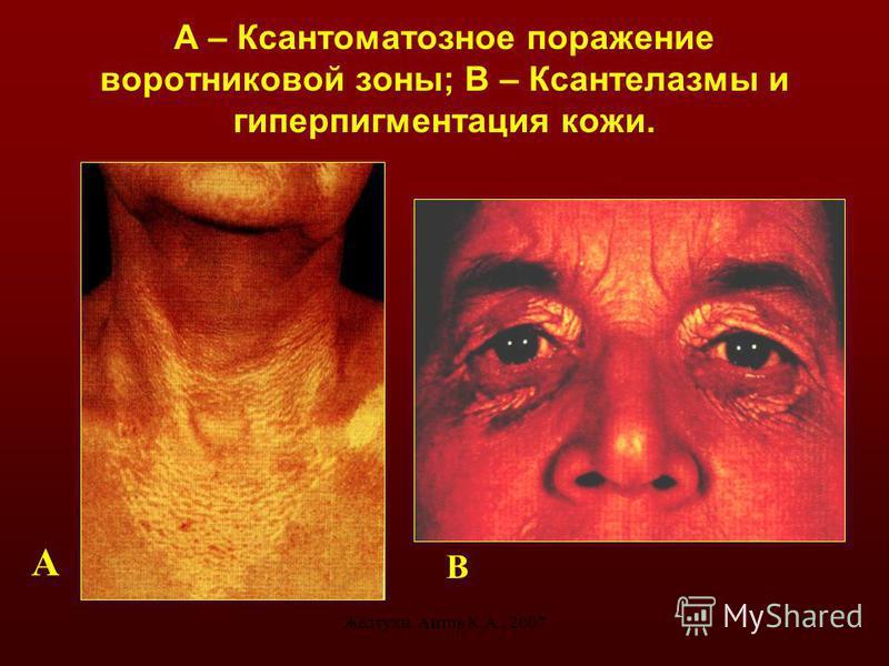 Желтухи. Аитов К.А., 200711 А – Ксантоматозное поражение воротниковой зоны; В – Ксантелазмы и гиперпигментация кожи. А В