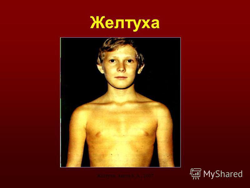 Желтухи. Аитов К.А., 20074 Желтуха