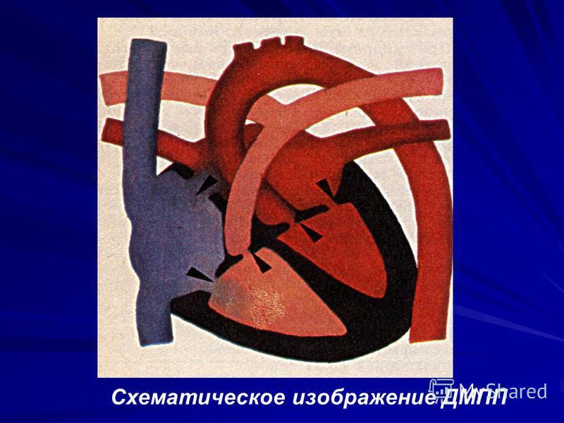 Схематическое изображение ДМПП