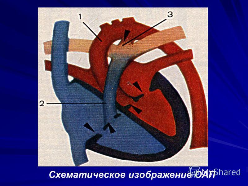 Схематическое изображение ОАП