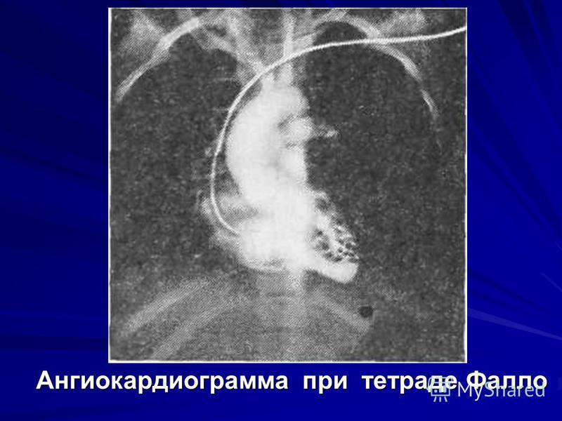 Ангиокардиограмма при тетраде Фалло