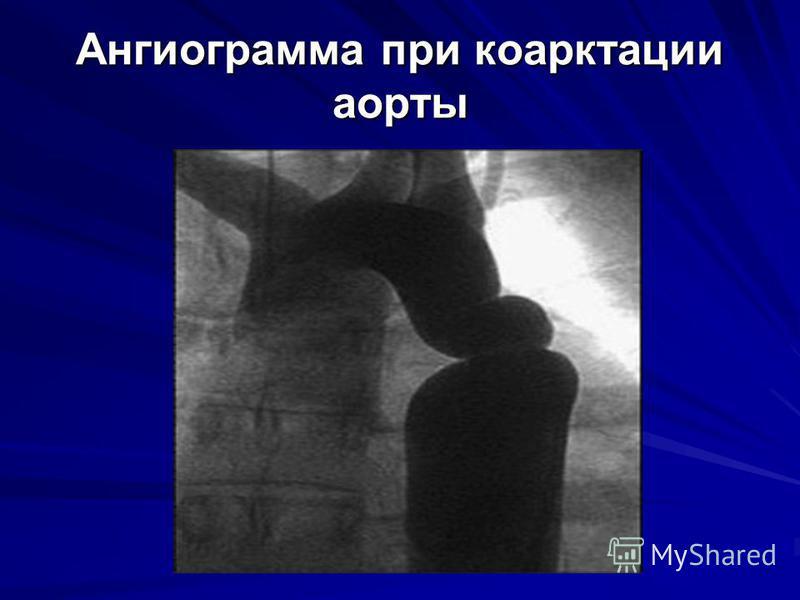 Ангиограмма при коарктации аорты