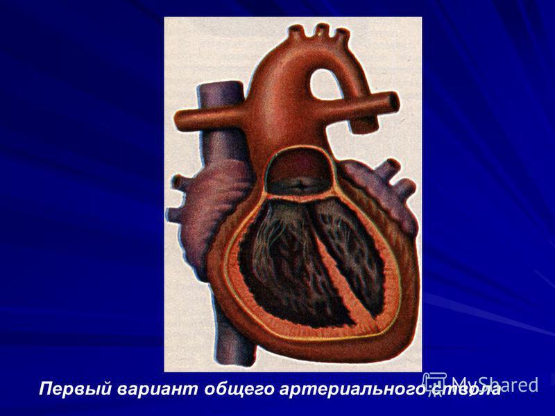 Первый вариант общего артериального ствола