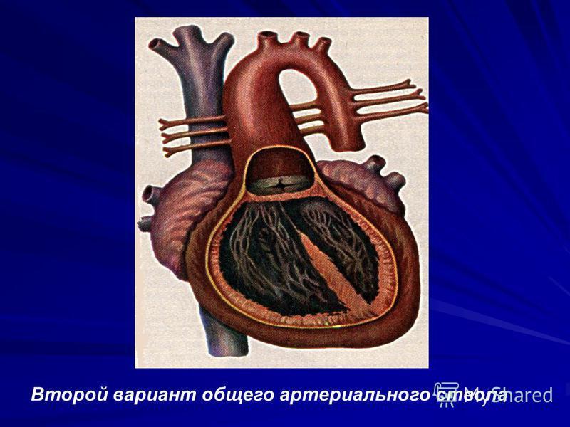 Второй вариант общего артериального ствола