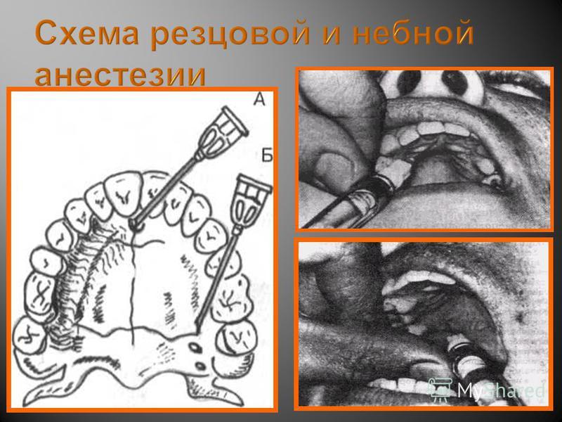 Схема резцовой и небной анестезии