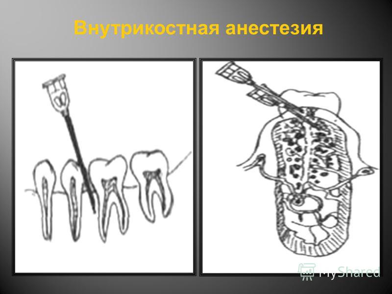 Внутрикостная анестезия