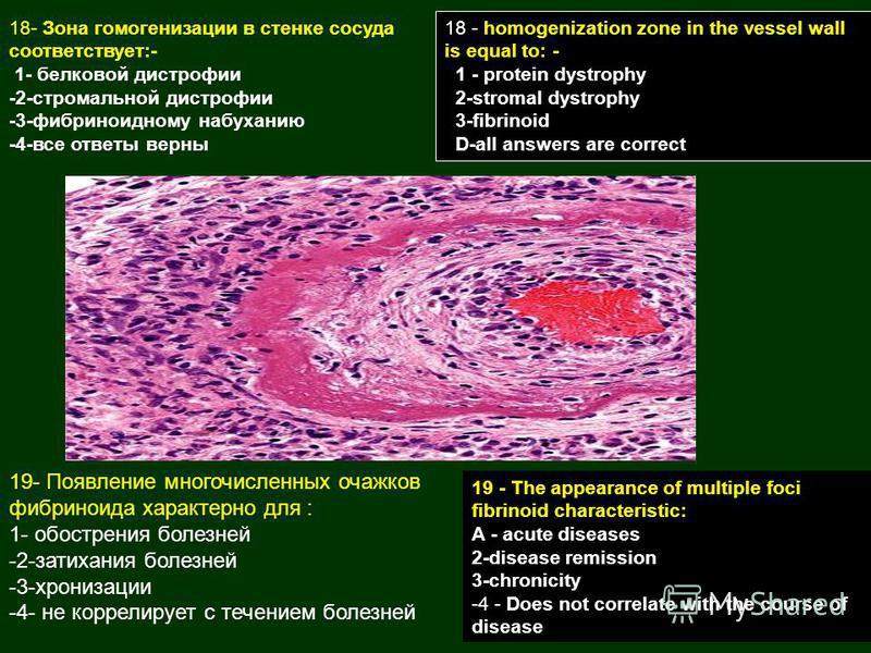 18- Зона гомогенизации в стенке сосуда соответствует:- 1- белковой дистрофии -2-стромальной дистрофии -3-фибриноидному набуханию -4-все ответы верны 19- Появление многочисленных очажков фибриноида характерно для : 1- обострения болезней -2-затихания