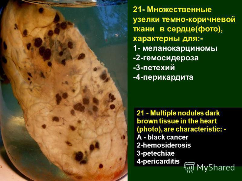 21- Множественные узелки темно-коричневой ткани в сердце(фото), характерны для:- 1- меланокарциномы -2-гемосидероза -3-петехий -4-перикардита 21 - Multiple nodules dark brown tissue in the heart (photo), are characteristic: - A - black cancer 2-hemos