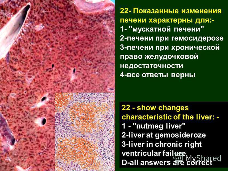 22- Показанные изменения печени характерны для:- 1-