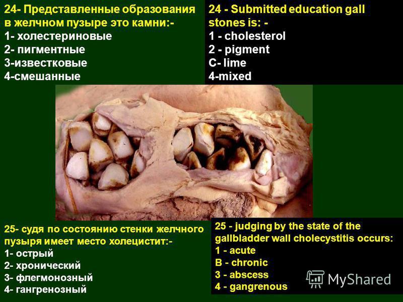 24- Представленные образования в желчном пузыре это камни:- 1- холестериновые 2- пигментные 3-известковые 4-смешанные 24 - Submitted education gall stones is: - 1 - cholesterol 2 - pigment C- lime 4-mixed 25- судя по состоянию стенки желчного пузыря