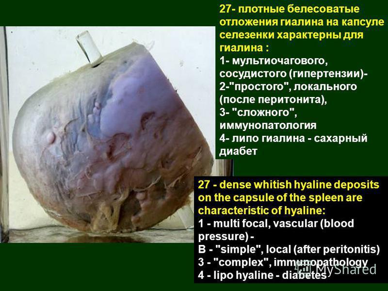 27- плотные белесоватые отложения гиалина на капсуле селезенки характерны для гиалина : 1- мульти очагового, сосудистого (гипертензии)- 2-